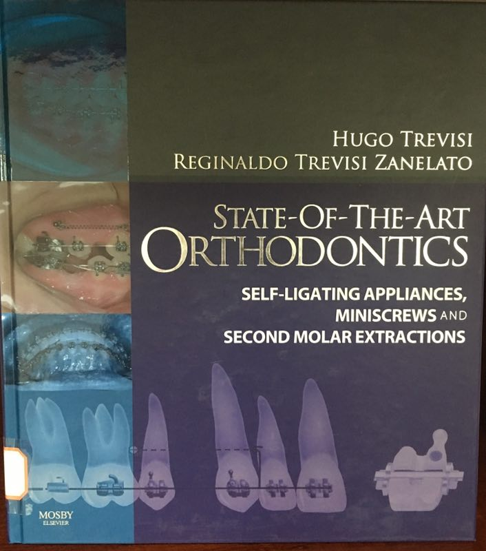 «State-of-the-Art Orthodontics: Self-Ligating Appliances, Miniscrews and Second Molars Extraction»